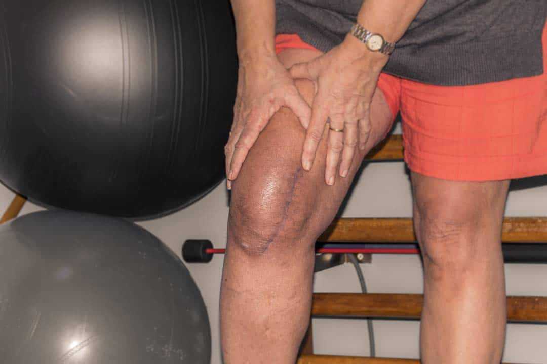 Kan u golfen met een knieprothese?